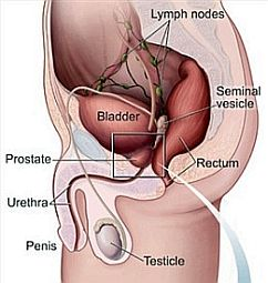 Prostate infection affects millions of men in the United States