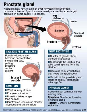 BPH: A non-cancerous enlargement of the prostate. Symptoms: the enlargement squeezes the urethra where it runs through the prostate. BPH is the most common of prostate conditions among men; Prostatitis is an inflammation of the prostate. It is not contagious. It is sometimes caused by bacteria similar to those which cause other types of urinary infections; Prostate cancer is a malignant tumor that most often begins in the outer part of the prostate, but it may spread to the inner part.